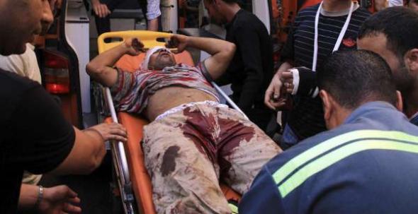 herido protesta Egipto 2013