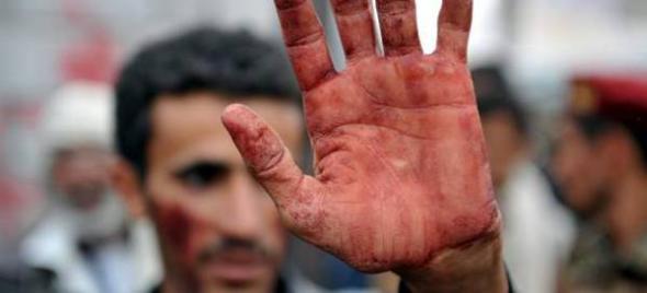 Mani Yemen mano mancada de sangre