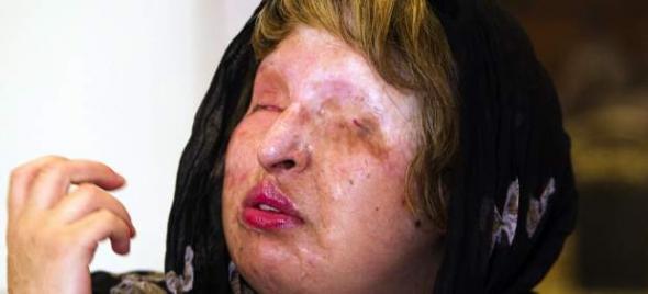 mujer atacada con ácido en Irán
