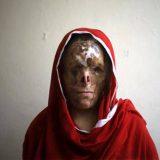 mujer afgana atacada acido